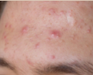 acne,dermatology,dermatologist,abilene,skin care,clinic