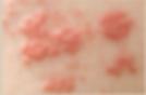 shingles,herpes zoster,painful rash,skin redness,stinging,dry irritated,dermatology,dermatologist,abilene,skin care,clinic