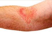 Atopic Dermatitis,eczema,dry skin, skin rash,dermatology,dermatologist,abilene,skin care,clinic