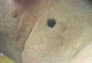 malignant melanoma,mole,changing lesion,skin cancer,dark lesion,dermatology,dermatologist,abilene,skin care,clinic
