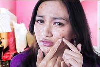 hormonal acne.dermatology,dermatologist,abilene,skin care,clinic