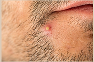 carbuncle,skin infection,boil,dermatology,dermatologist,abilene,skin care,clinic