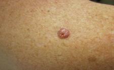 BCC,basal cell carcinoma, skin cancer,pink lesion,dermatology,dermatologist,abilene,skin care,clinic