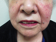 rosacea,facial redness,acne,face flushing,stinging,dry irritated,dermatology,dermatologist,abilene,skin care,clinic
