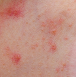 intertigo,red bumps,rash,dermatology,dermatologist,abilene,skin care,clinic