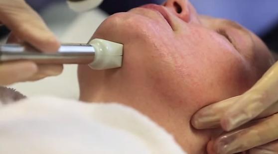 fractora on a patient