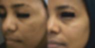 facial1.PNG