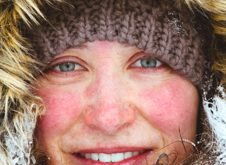 Talvi-ihon hoito