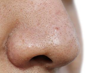 mustapäät, mustapää, nenä