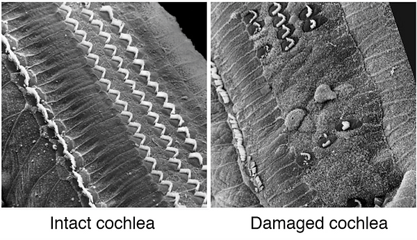 cochlea.png