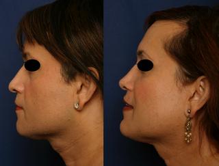 Septorhinoplasty