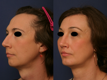 Septorhinoplasty
