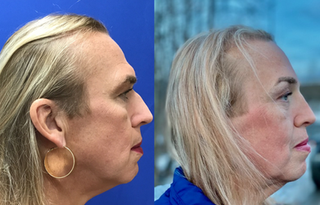 Septorhinoplasty (closed) with Cartilage Grafts, Radix Graft and Weirs