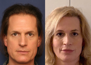 Septorhinoplasty (closed) with Cartilage Grafts