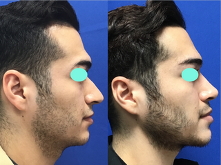Septorhinoplasty (closed) with Weirs