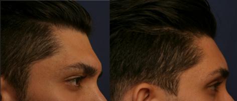 Forehead Lift and Orbital Bony Contour