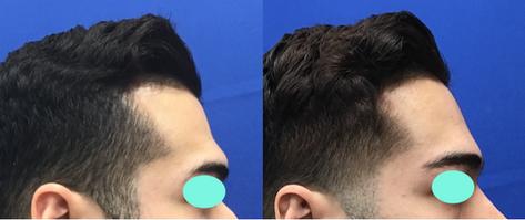 Modified Coronal Forehead Lift and Orbital Bony Contour