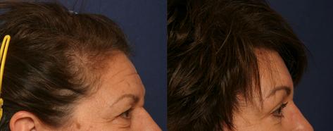Hairline Forehead Lift