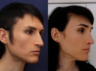 Septorhinoplasty (closed) with Cartilage Grafts and Weirs
