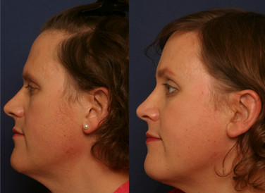 Septorhinoplasty with Radix Graft and ULC Grafts with Soft Tissue