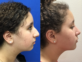 Septorhinoplasty and Chin Implant (4 months post op)