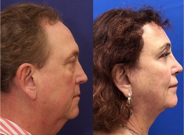 Septorhinoplasty (closed) with Cartilage Grafts, Upper Lateral Grafts and Radix Grafts