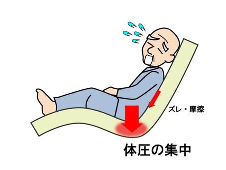 褥瘡について