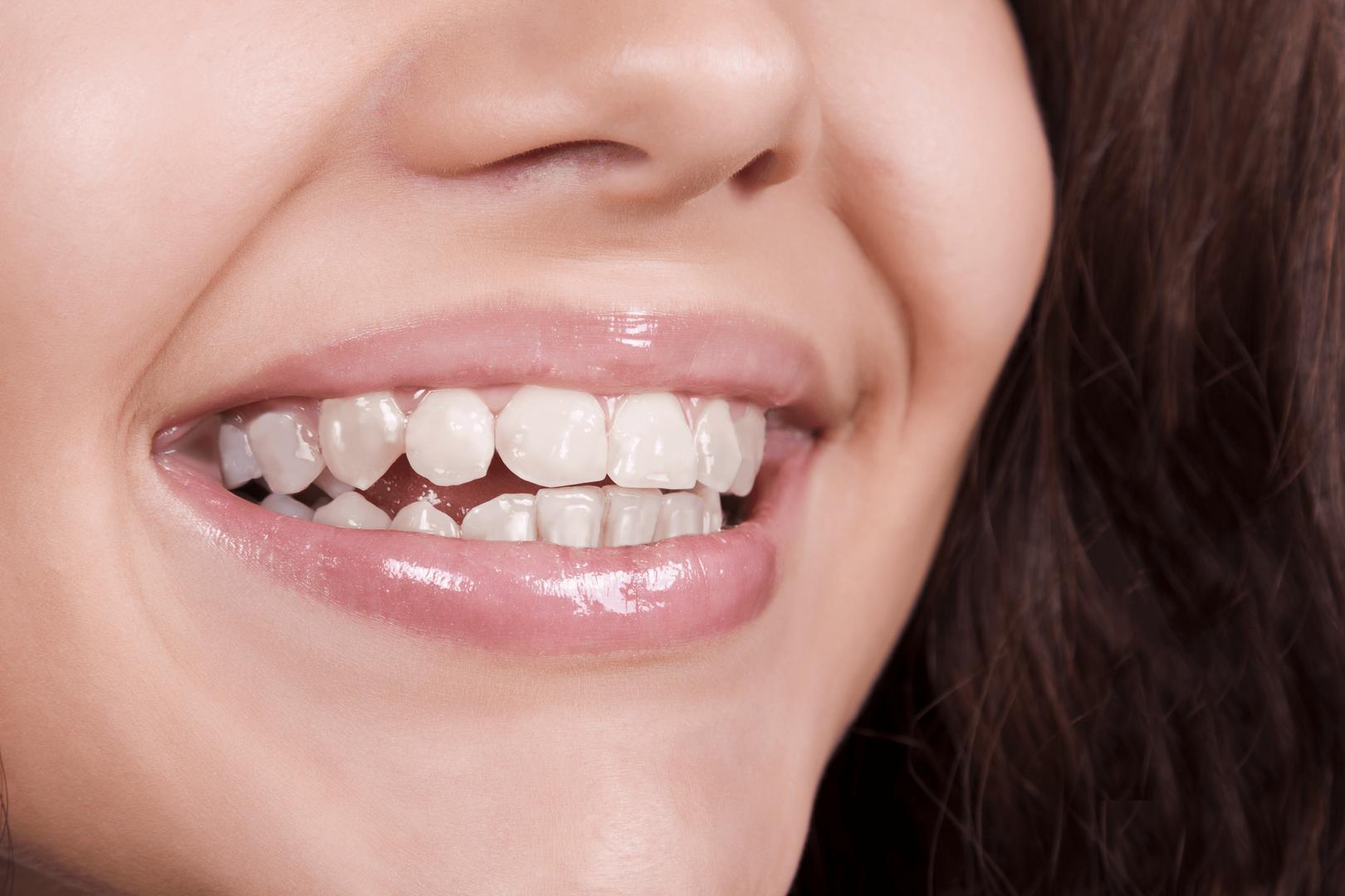braces1-Edit.png