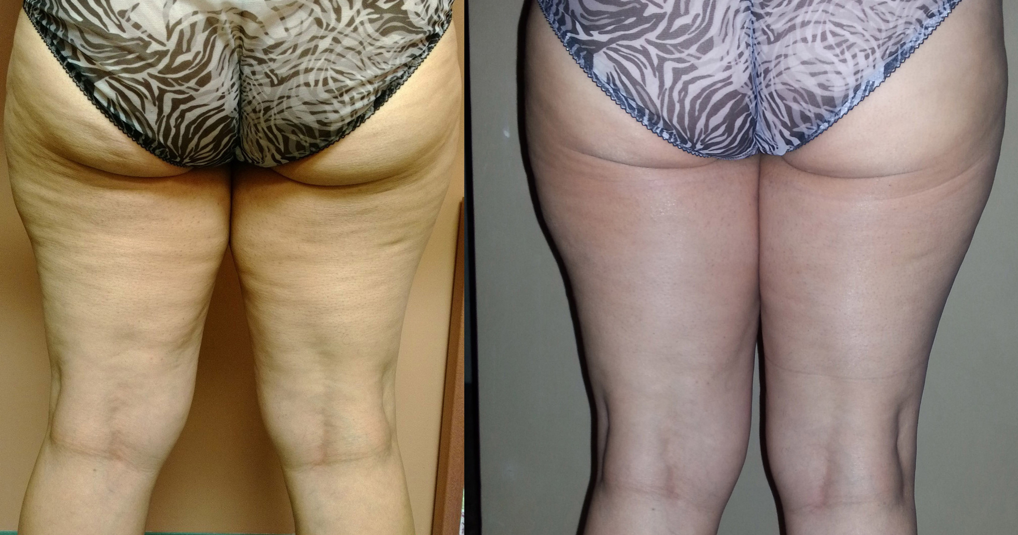 Cellulite Therapy (legs only)
