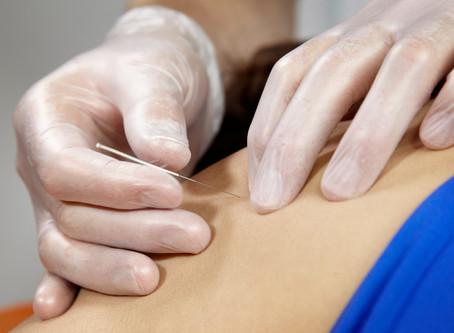Dry Needling succesvol bij schouderklachten