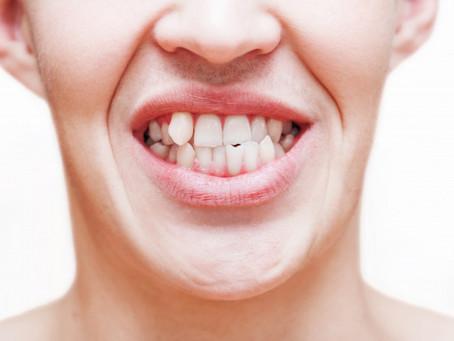 Scheefstand van tanden.