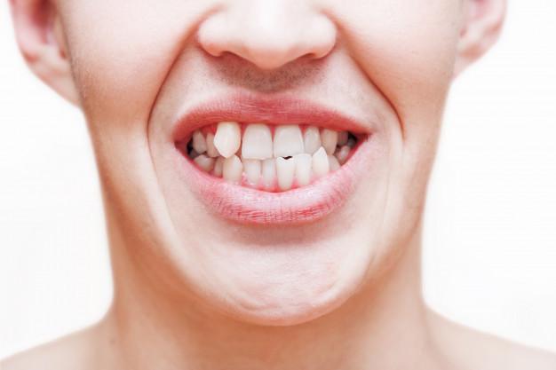 tand eruit? tand erin!  voor uitgeslagen tanden of uitgevallen tanden bij een ongeluk