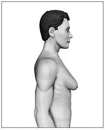Ginecomastia grau 3