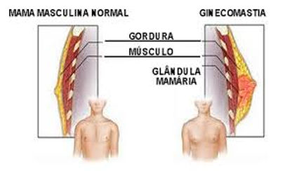 Explicação ginecomastia