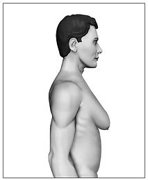 Ginecomastia grau 4