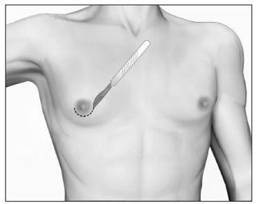 Cirurgia Ginecomastia