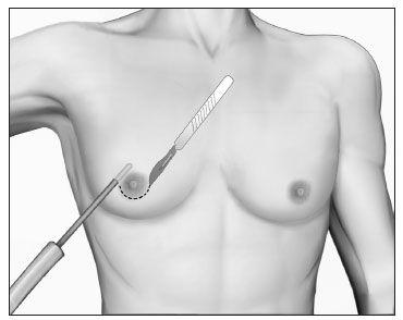 Cirurgia de ginecomastia com lipoaspiração