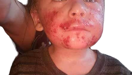 3 Year Old w/ Severe Eczema Gets a Miracle