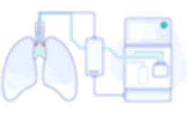 TrachFlush procedure