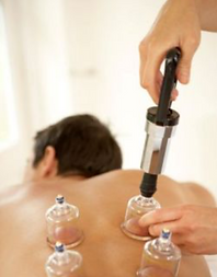 Plastic Cupping Therapy