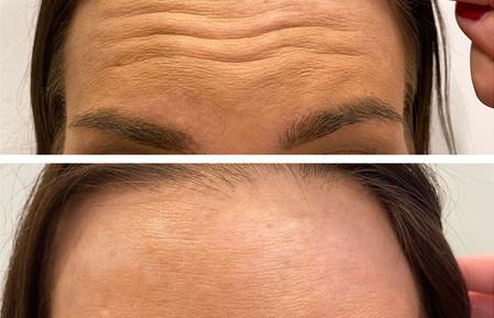 Wrinkle Reducers