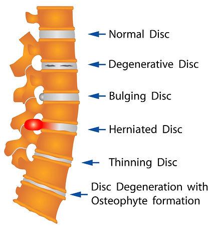 disc-disorders-chart.jpg