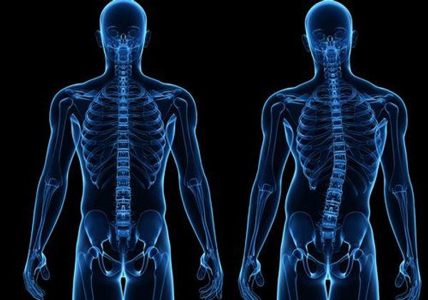 scoliosis-treatment-diamond-chiropractic