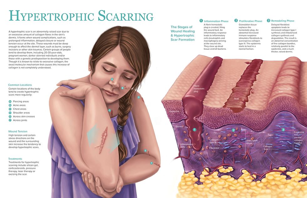 Pathology medical illustration