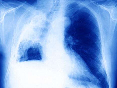 CANCER DEATHS CONTINUE A STEEP DECLINE