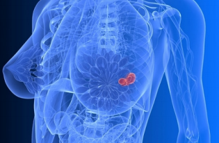 BREAST CANCER AND DIABETES