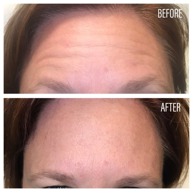 Before-After(29).jpg