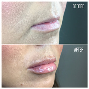 Before-After(24).jpg