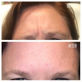 Before-After(28).jpg