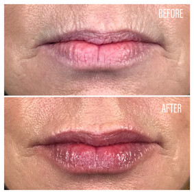 Before-After(22).jpg